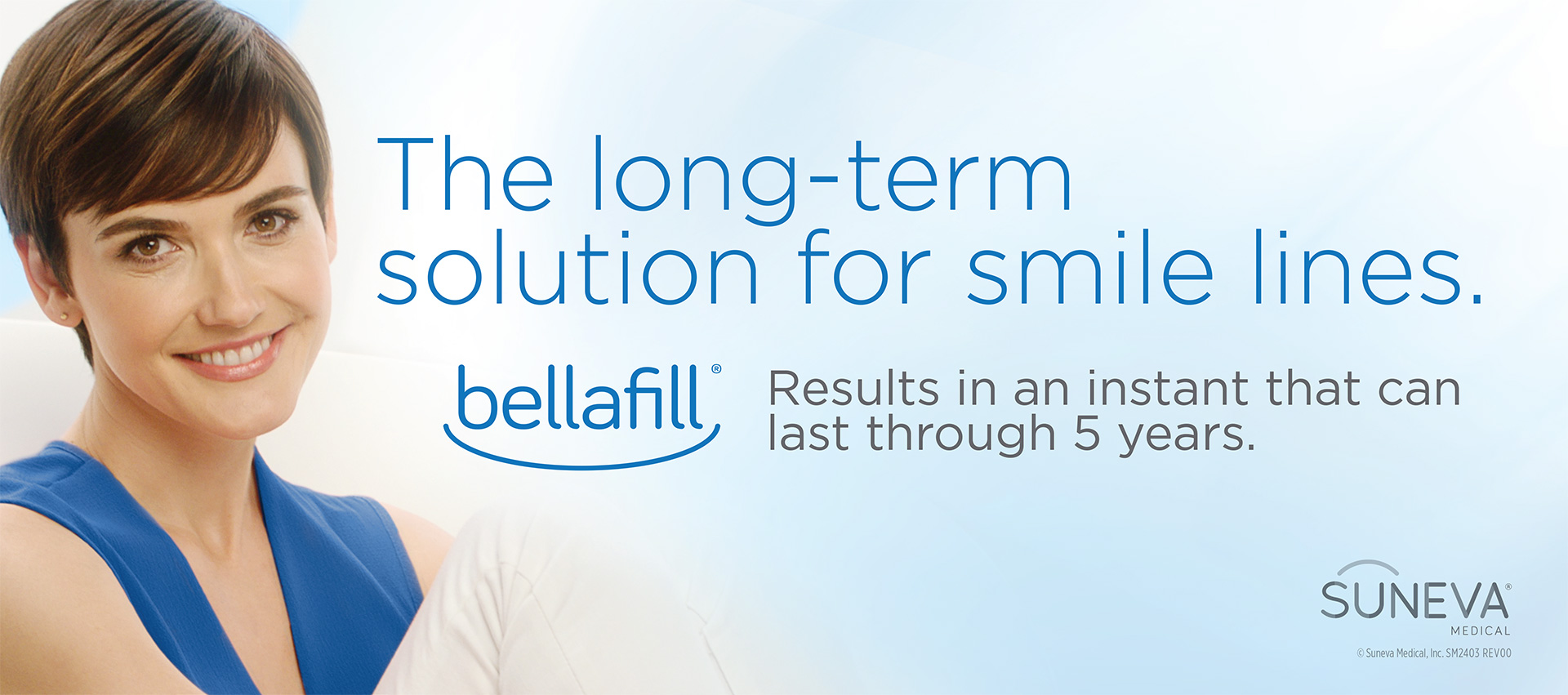 Bellafill® for Nasolabial Folds
