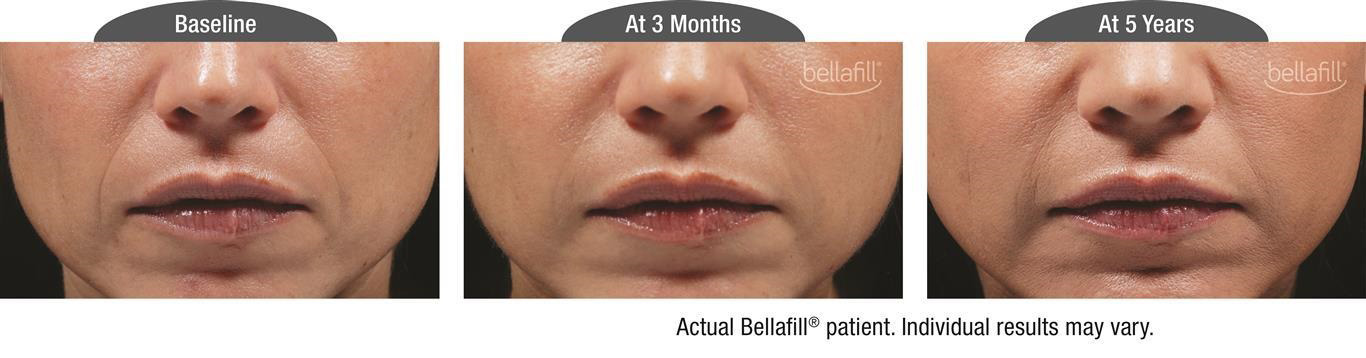 Bellafill Dermal Filler for Nasolabial Folds